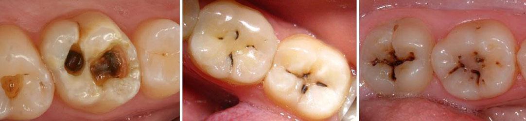 karies_zubov_simptomy