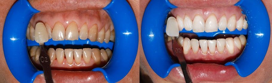 otbelivanie_zubov2