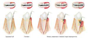 parodont (1)