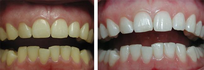 отбеливание зубов luma cool отзывы
